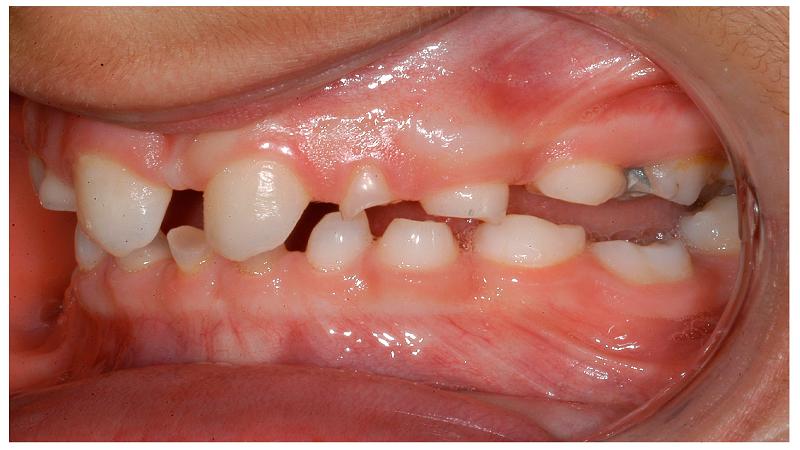 متخصص ارتودنسی اصفهان آشنایی با انواع دیسپلازی دندانی