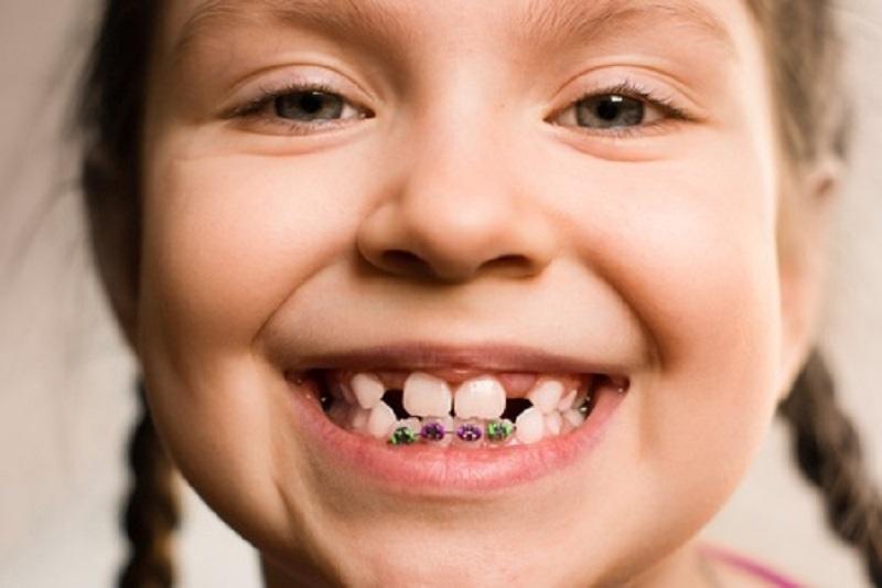 ارتودنسی در کودکان مبتلا به دیابت