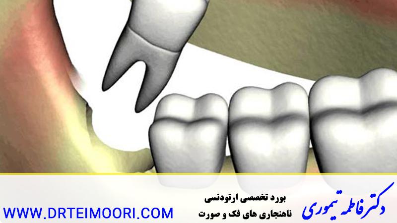 ارتودنسی و دندان عقل