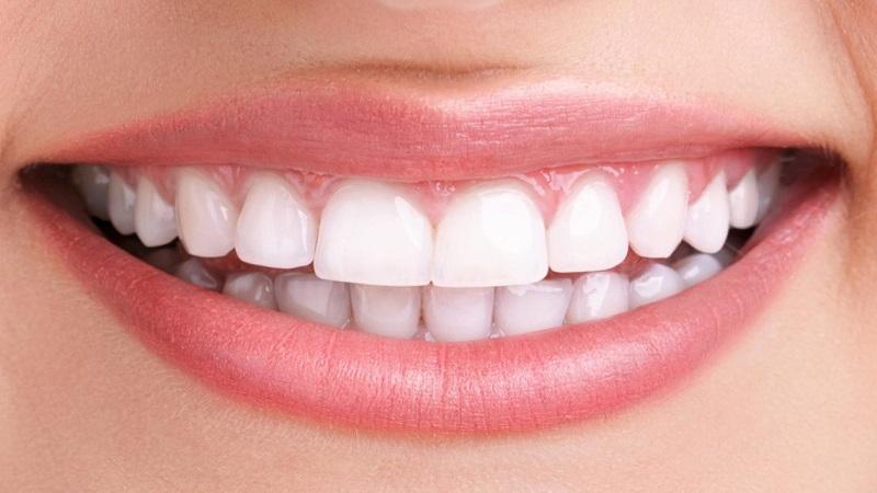 اصلاح لبخند