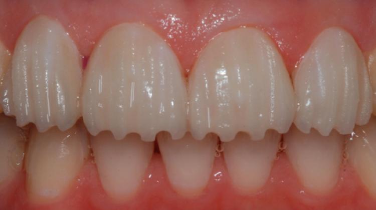 اصول تراش دندان برای طراحی لبخند
