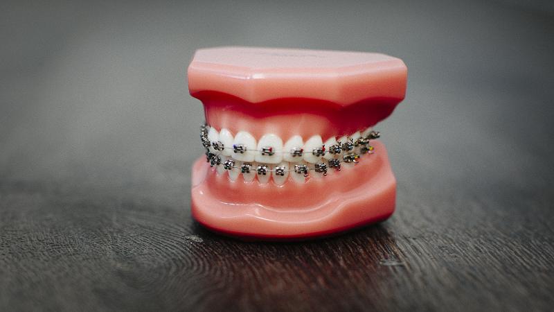 متخصص ارتودنسی اصفهان اهمیت پلاک دندان بعد از انجام ارتودنسی