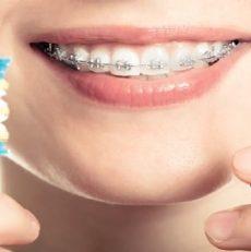 بهداشت دهان و دندان در طول درمان ارتودنسی