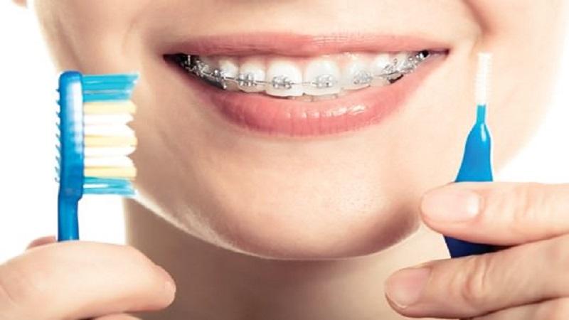 متخصص ارتودنسی اصفهان بهداشت دهان و دندان در طول درمان ارتودنسی