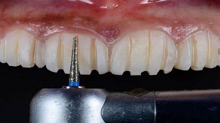 تراش دندان و تغییرات زیبایی طرح لبخند