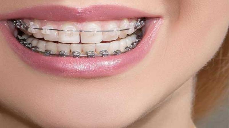 برای ترمیم دندان ارتودنسی بهتر است یا کامپوزیت