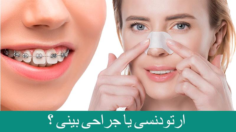 متخصص ارتودنسی اصفهان | درمان ارتودنسی یا جراحی بینی