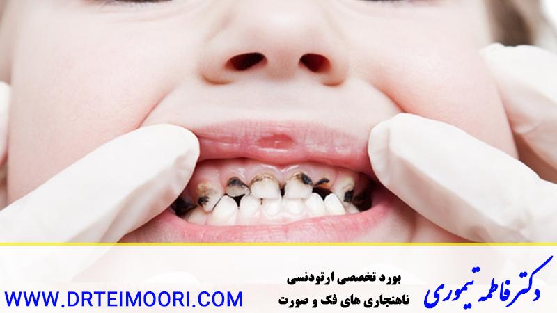 دندانهایمان در حال پوسیدگی