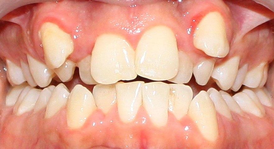 متخصص ارتودنسی اصفهان | دندان نیش بیرون زده