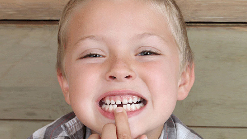 متخصص ارتودنسی اصفهان | دندان های غایب