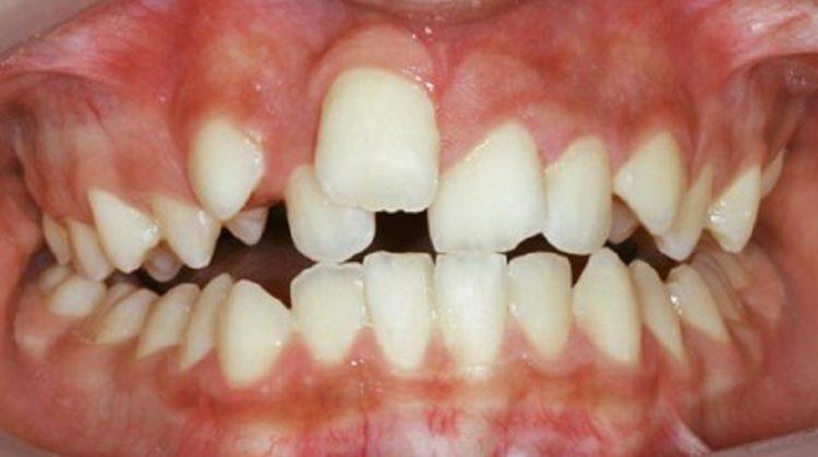 دندان های نامرتب و درمان ارتودنسی