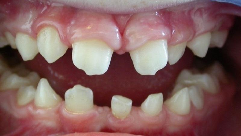 دیسپلازی دندانی .