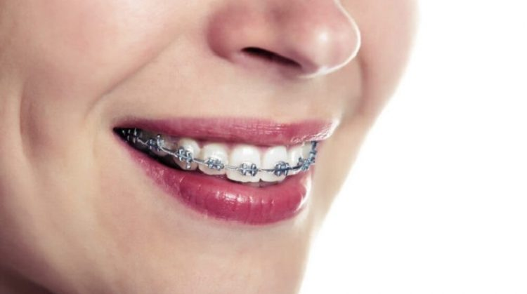 ردیف کردن دندان ها