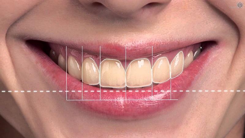 متخصص ارتودنسی اصفهان روش های اصلاحی طرح لبخند ( قسمت اول )