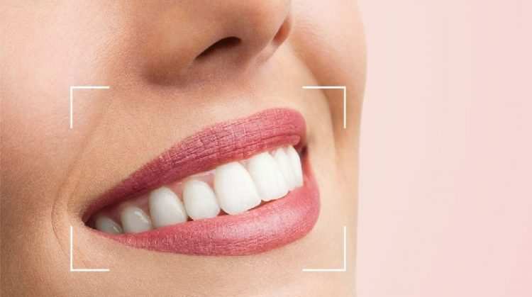 روش های اصلاحی طرح لبخند ( قسمت دوم )