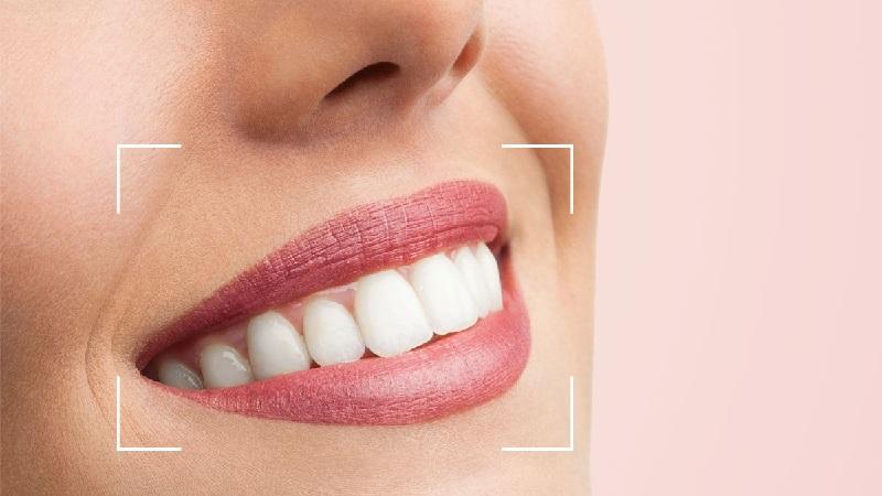 متخصص ارتودنسی اصفهان روش های اصلاحی طرح لبخند ( قسمت دوم )