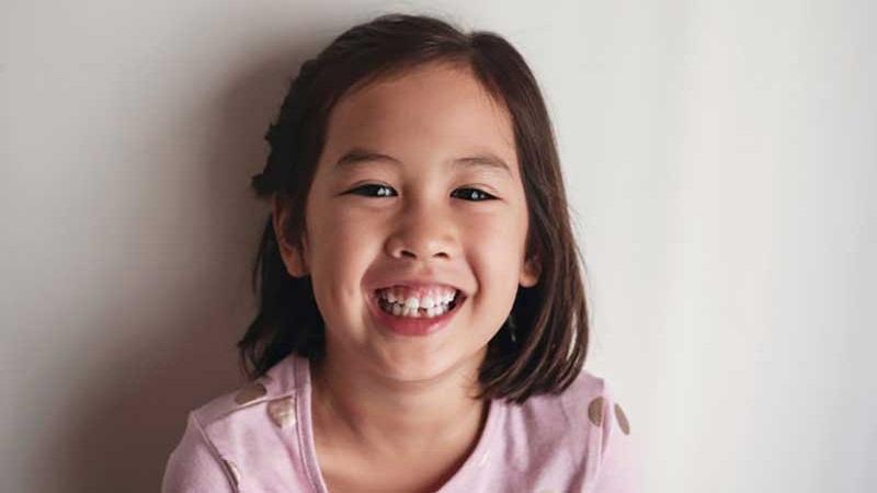 علت کج شدن دندان کودکان