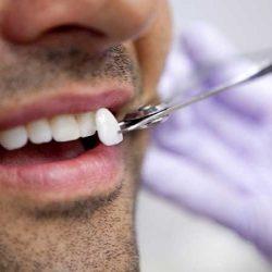 عوارض احتمالی لمینیت دندان
