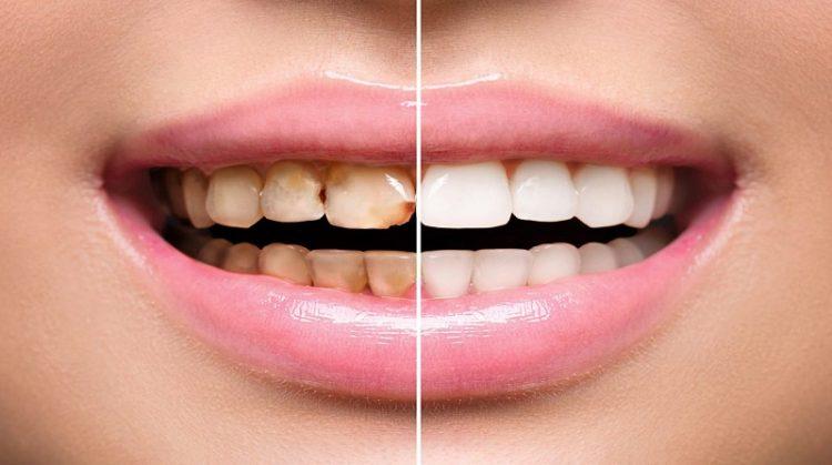 فرآیند درمان طراحی خط لبخند با ونیر های دندانی