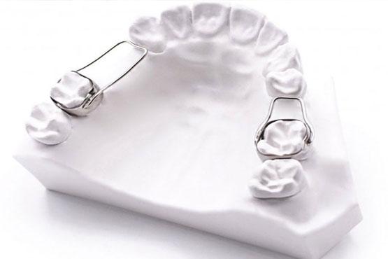 فضای نگهدارنده های دندان