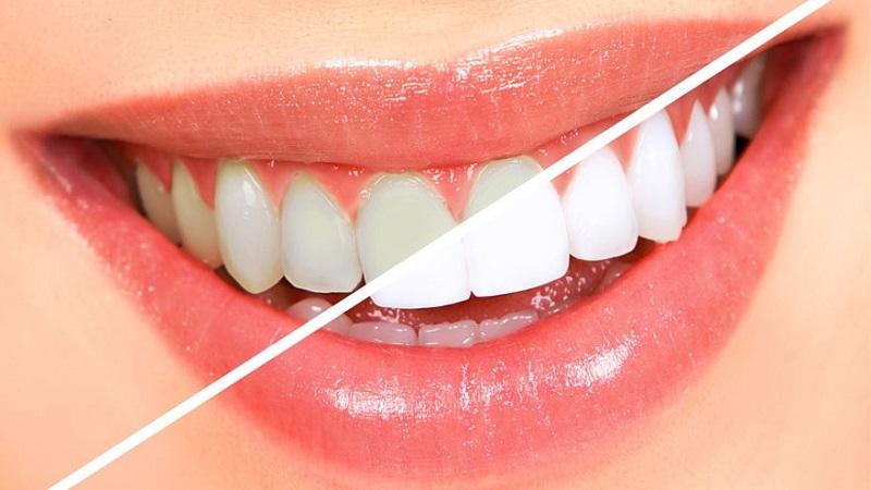 فواید و مزایای ونیر کردن دندان