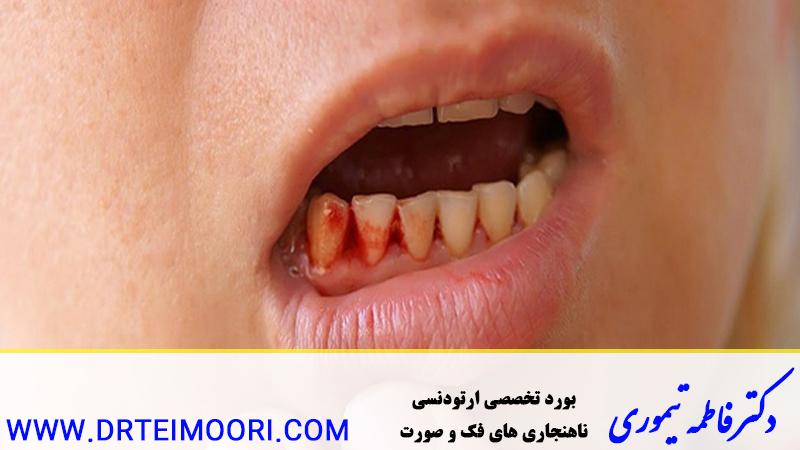 مدیریت دندانی در بیماران لوسمی
