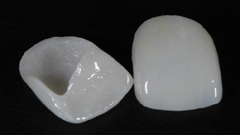 لمینت دندان بدون تراش دندان