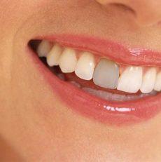 علائم سیاه شدن دندان