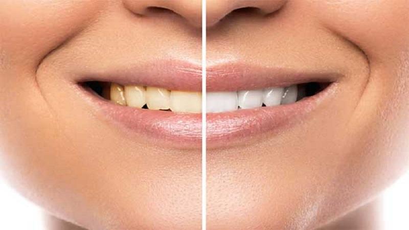مراقبت و ترمیم دندان