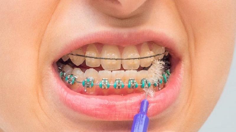 مسواک زدن دندان های ارتودنسی شده