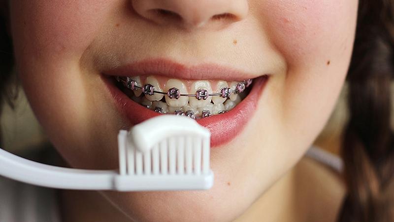 مسواک زدن صحیح ارتودنسی دندان