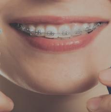 رعایت بهداشت ارتودنسی دندان با مسواک زدن صحیح