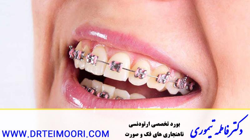 مشکلات دهانی در حین انجام ارتودنسی