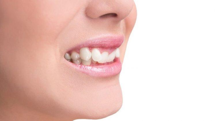 ناهنجاری دهان و دندان