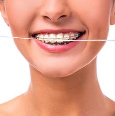 نخ کشیدن و فلوراید برای بهداشت دندان های ارتودنسی شده