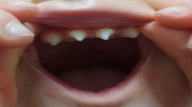 متخصص ارتودنسی اصفهان نشانه های دیسپلازی دندانی چیست ؟