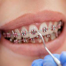 پوسیدگی دندان در زمان ارتودنسی