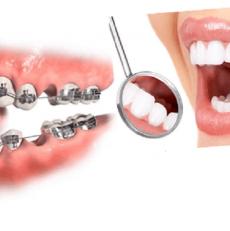 آیا کشیدن دندان برای ارتودنسی الزامی است ؟