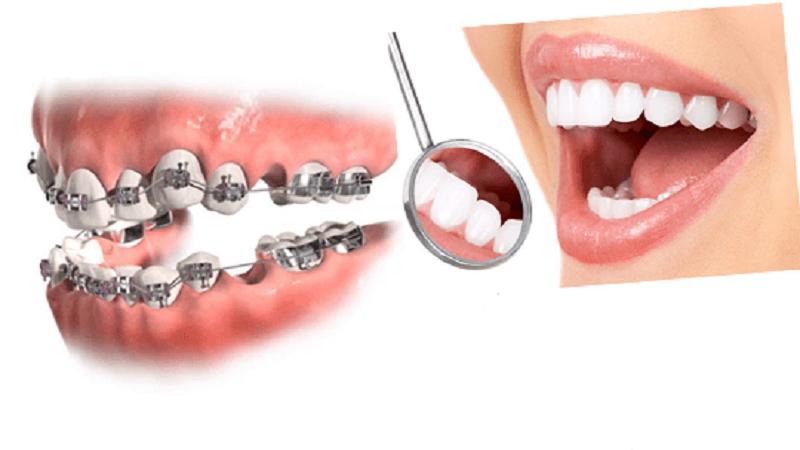 متخصص ارتودنسی اصفهان کشیدن دندان برای ارتودنسی