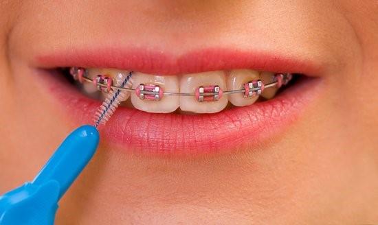 مسواک بین دندانی