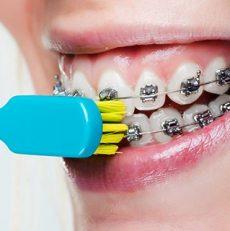 براکت و دهان خود را چگونه تمیز کنیم؟