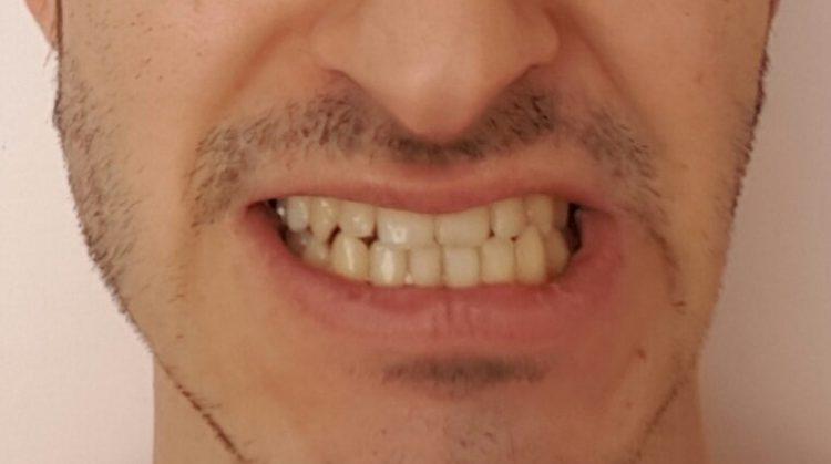فاصله دندان ها