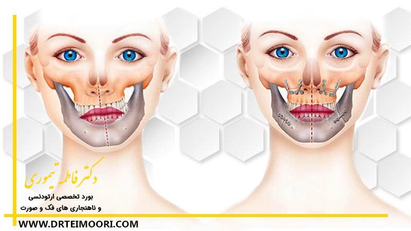 جراحی های ارتوگناتیک یا جراحی فک