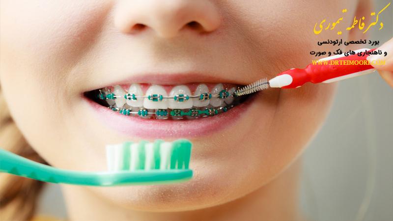 خمیر دندان برای دندان های ارتودنسی
