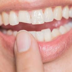 علایم شکستگی دندان چیست؟
