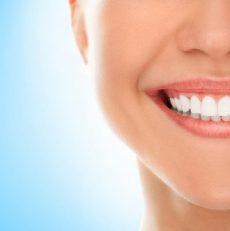 بلیچینگ دندان در منزل ممکن است ؟