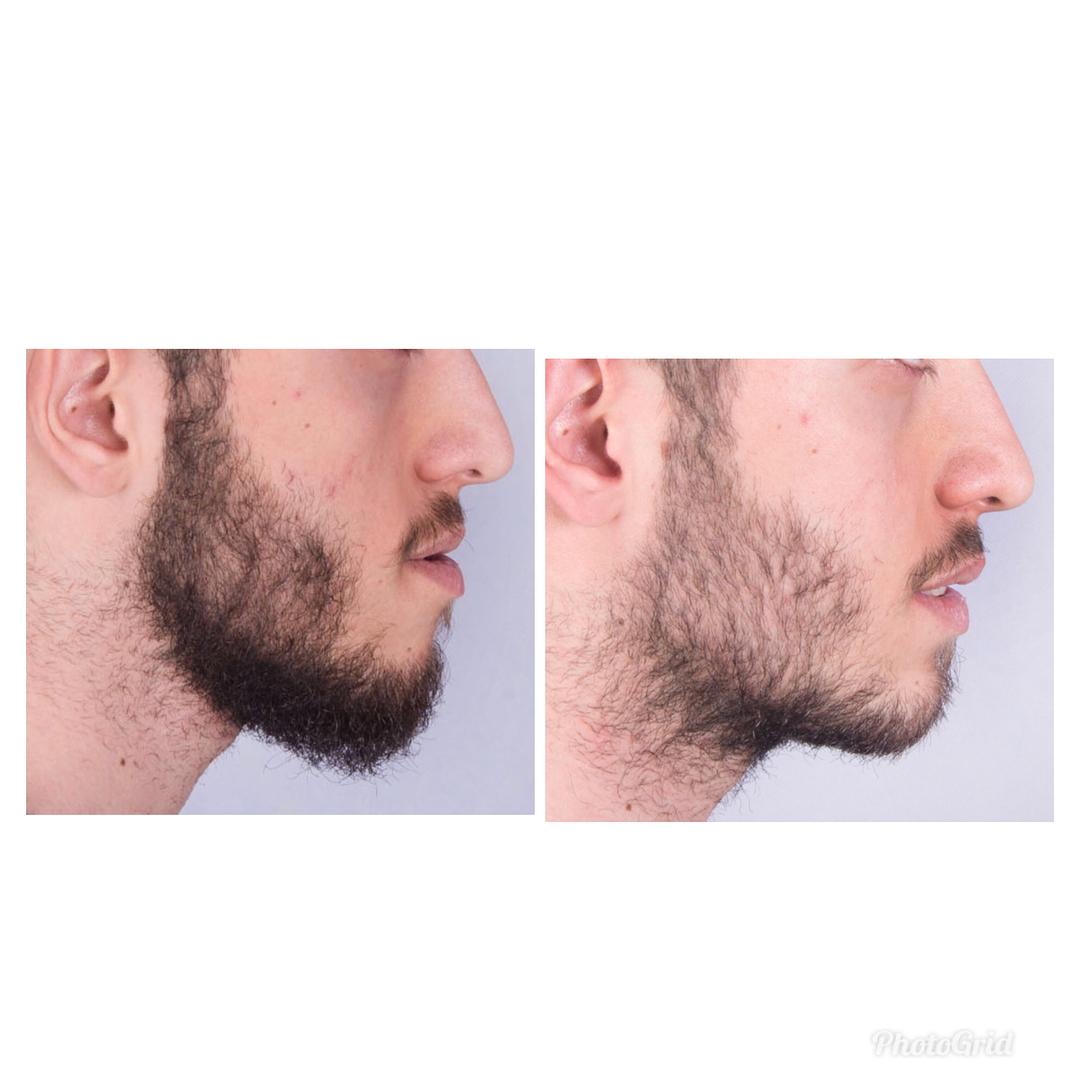 تصاویر قبل و بعد ارتودنسی دکتر فاطمه تیموری