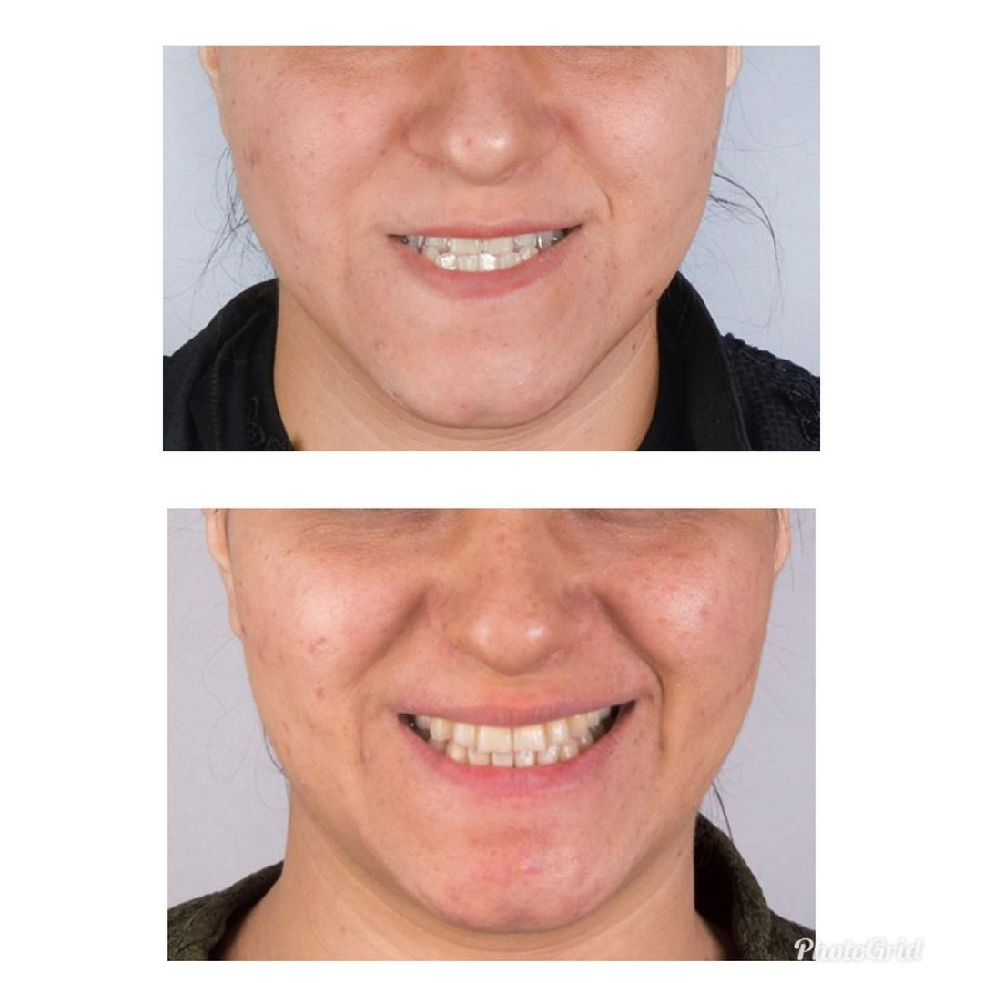 تصاویر قبل و بعد ارتودنسی