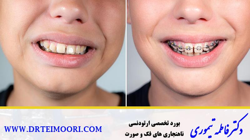 دندانهای تراز شده با ارتودنسی | متخصص ارتودنسی اصفهان