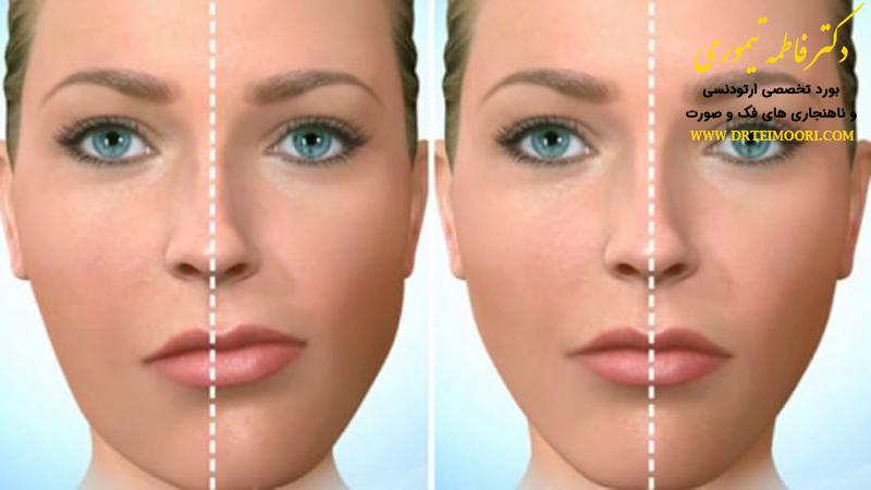متخصص ناهنجاری فک و صورت | جراحی فک و صورت